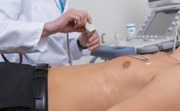 Duplexsonographie der Nierenarterien